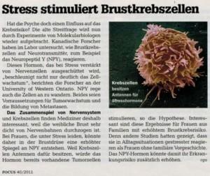 Stress stimuliert Brustkrebszellen focus